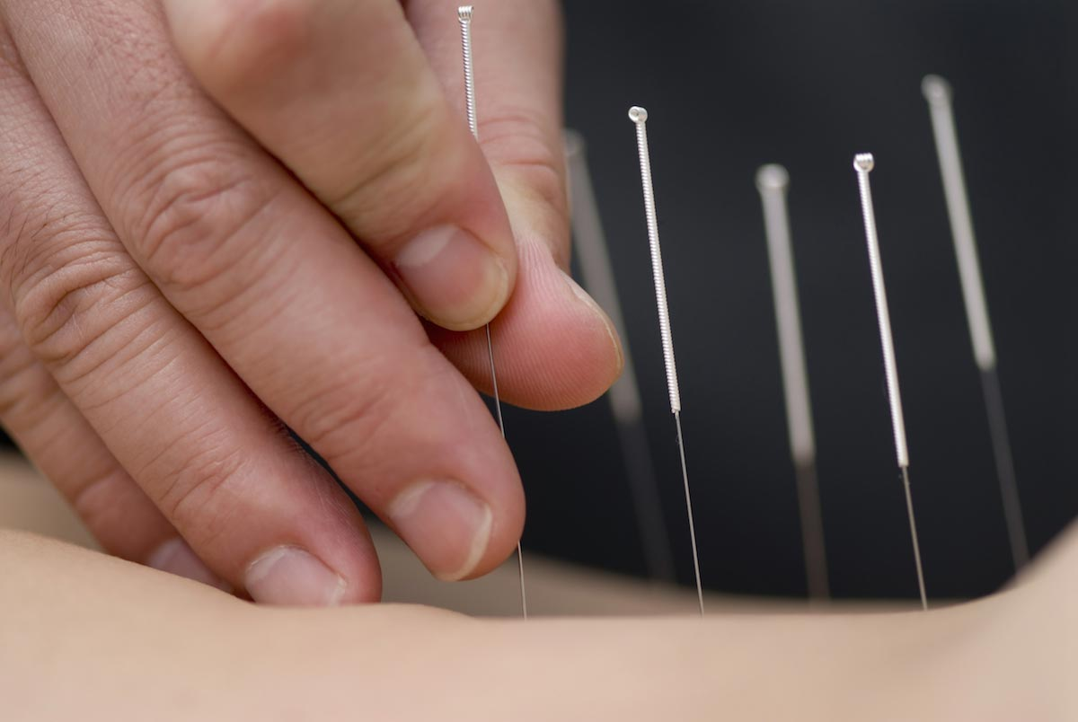 Acupuncture found to help treat men with erectile dysfunction and fertility issues